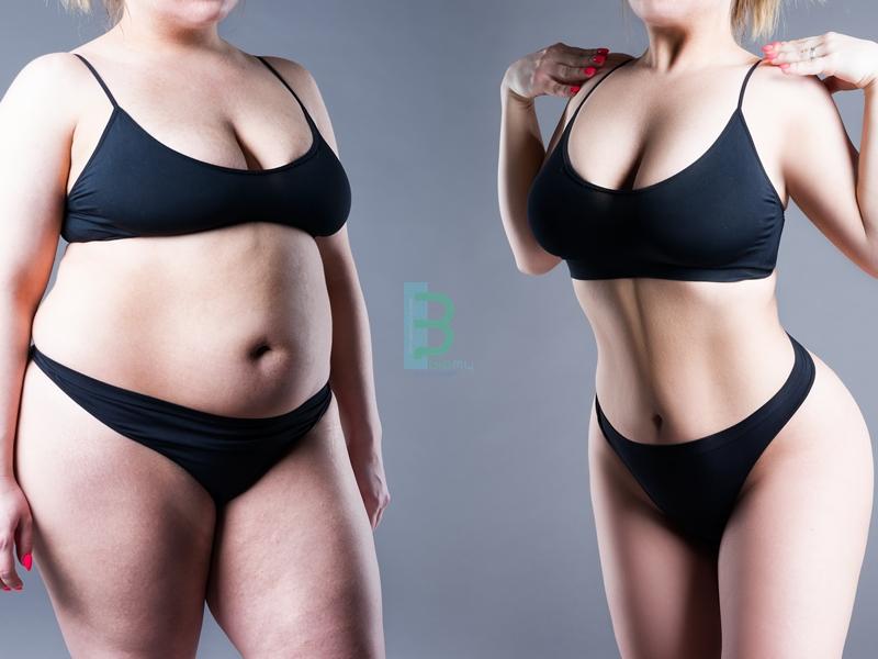 Obezite Tedavisi ve Öncesi Sonrası Fotoğrafları