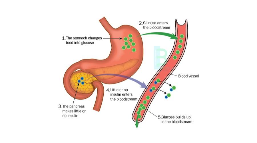 Tip 2 Diyabet Tedavisi, Şeker Ameliyatı İstanbul