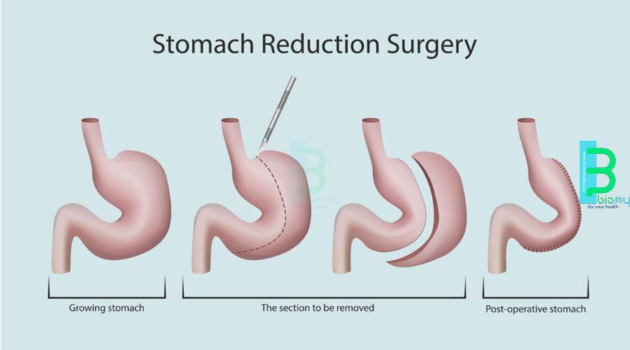 Tüp Mide Ameliyatı İstanbul, En İyi Doktorlar İle (Sleeve Gastrektomi)
